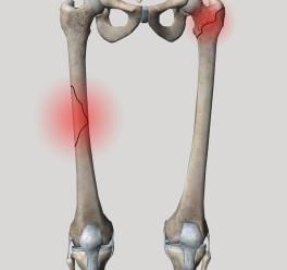 Переломы бедра