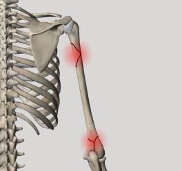 Переломы плеча