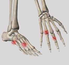Переломы кисти и стопы