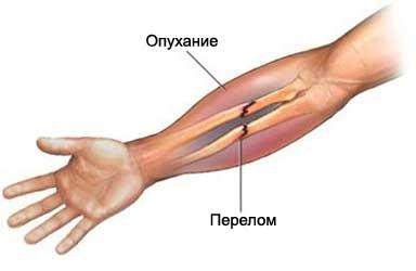 переломы диафиза лучевой кости